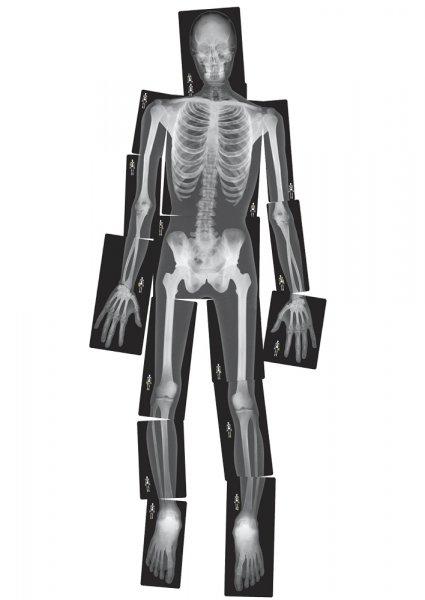 Röntgenbilder Mensch, lebensgroß, 18-tlg.